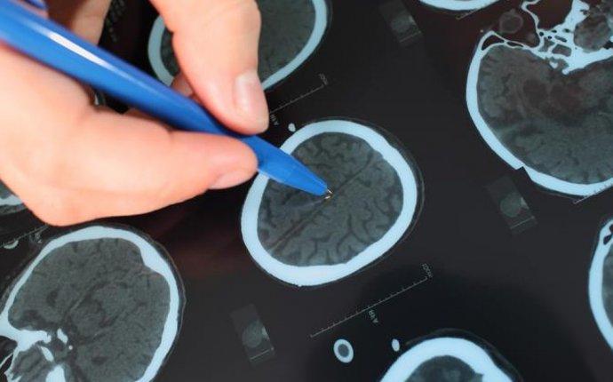 Rare Neurological Disorder List   LIVESTRONG.COM